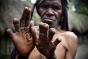 The Dani People cut their fingers off every time a loved one dies.