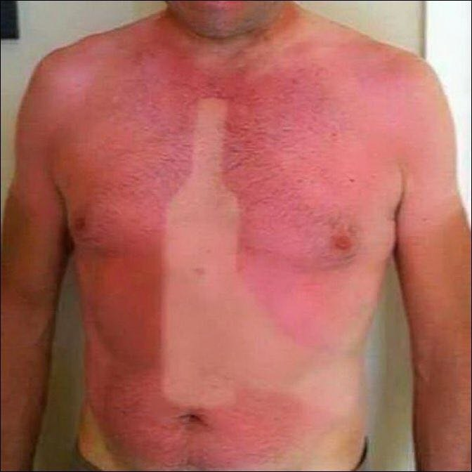 Came back from the beach with a bit of a sunburn.